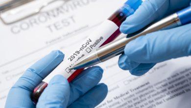 Photo of Koronawirus w Małopolsce: 88 nowych przypadków, 1 osoba zmarła