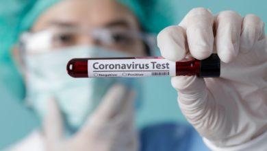 Photo of Koronawirus: 35 nowych przypadków w Małopolsce, 262 w Polsce