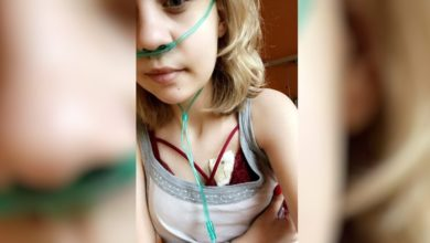 Photo of Choroba postępuje bardzo szybko! Ratuj Monikę